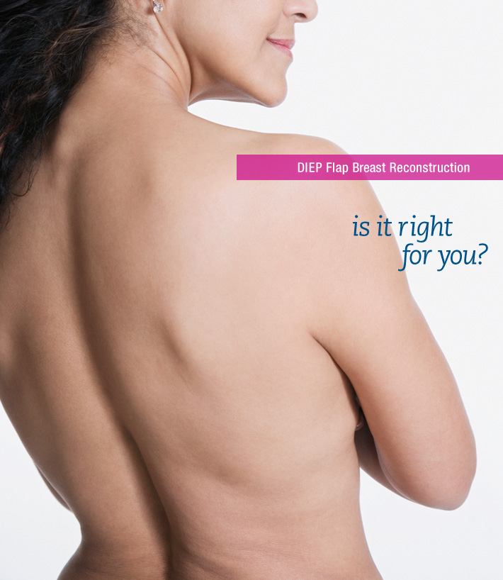 DIEP Flap Breast Reconstruction - is it right for you?
