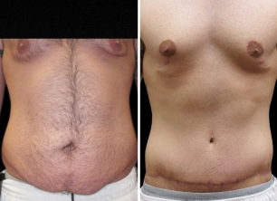 Total body lift and treatment of gynecomastia.
